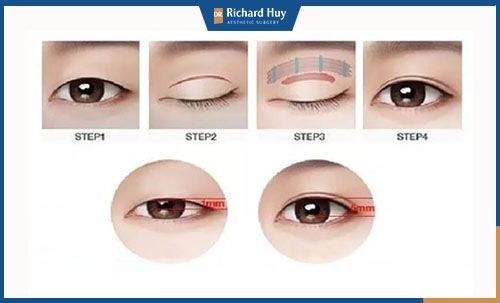 Các bước phẫu thuật thẩm mỹ mắt to