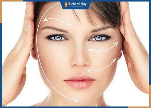 Căng da trán trẻ hóa toàn bộ gương mặt