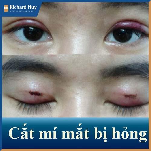 Mí mắt bị hỏng do phẫu thuật tại cơ sở không đảm bảo