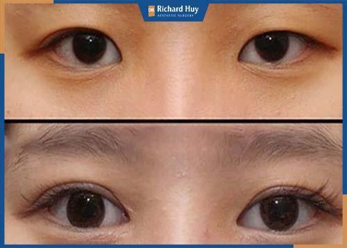 Cải thiện mí mắt sụp do phẫu thuật hỏng, đôi mắt to sắc hơn
