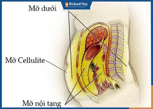 Mỡ tự thân dùng để cấy mỡ mắt thường lấy ở những vùng nhiều mỡ thừa như bụng, bắp tay, đùi