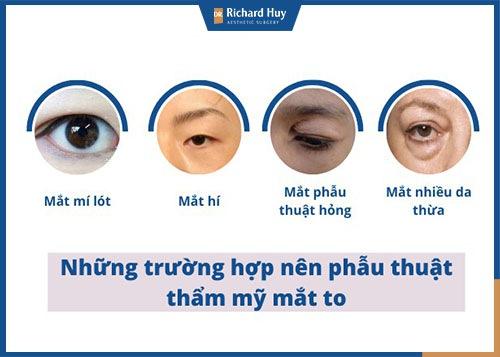Trường hợp nên phẫu thuật thẩm mỹ mắt to hơn