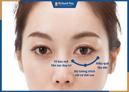 Cấy mỡ làm đầy hốc mắt được đánh giá là hiệu quả hơn so với phương pháp tiêm filler