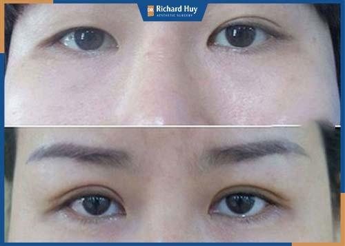 Tình trạng mí mắt không đều, bên nhỏ bên to mất cân đối