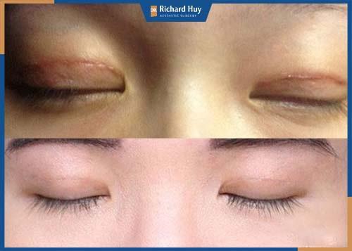 Cải thiện tình trạng mắt sẹo, kỹ thuật bác sỹ không tốt trước đó