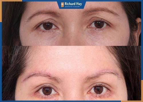 Nâng cung chân mày cải thiện lão hóa ở mắt, gương mặt được trẻ trung hơn