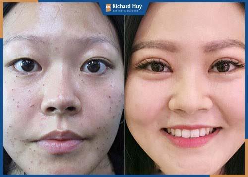 Kỹ thuật bỏ đi phần da thừa vùng mắt và tạo nếp mí mới sắc nét