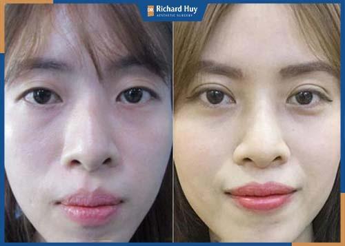 Thẩm mỹ mắt to tránh xâm lấn dây thần kinh trên gương mặt