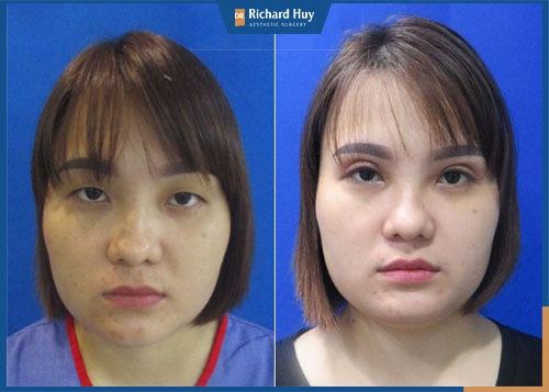 Phẫu thuật thẩm mỹ mắt to giúp khắc phục toàn diện các khuyết điểm vùng mắt