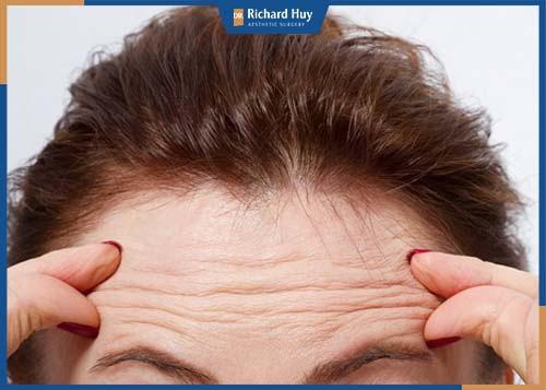 Người có dấu hiệu da trán lão hóa nhăn nheo, dấu hiệu của tuổi tác