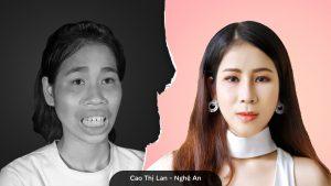 Cao Thị Lan và quá trình lột xác để chăm sóc tốt hơn cho mẹ