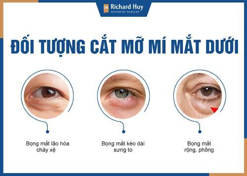 Đối tượng cắt mỡ mí mắt dưới