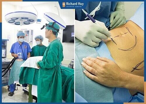Bác sĩ sẽ thực hiện quy trình hút mỡ bằng công nghệ siêu âm nội soi.