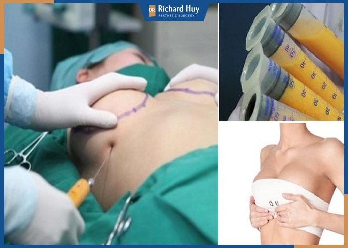 Lượng mỡ tiêm vào ngực không đều dấn đến tình trạng vón cục và hoại tử