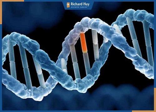 Yếu tố di truyền bẩm sinh gây ra bọng mắt chỉ có thể khắc phục bằng phương pháp phẫu thuật lấy mỡ mí mắt