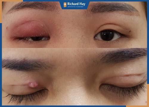 Mắt sưng, viêm mất cân đối do phẫu thuật hỏng
