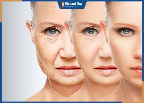 Căng da mặt là phương pháp thẩm mỹ hiện đại giúp trẻ hóa làn da