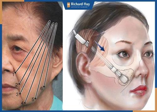 Căng da mặt nội soi có nguy hiểm không?