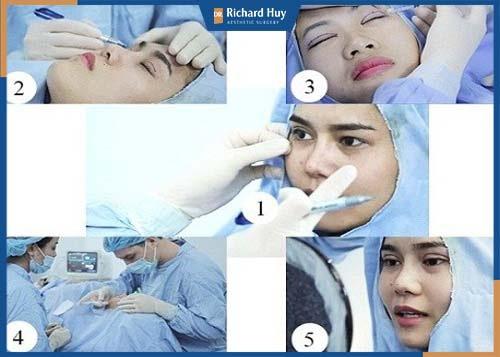 Quy trình cắt góc mắt rõ ràng, đảm bảo an toàn