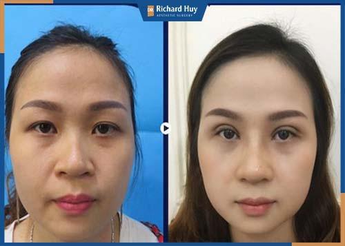 Sau 3 đến 4 tuần: Hồi phục hoàn toàn, mắt đều và đường nét mềm mại.