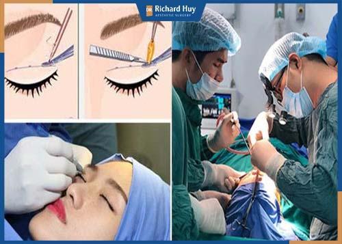 Bác sĩ tiến hành phẫu thuật và xác định tỷ lệ vùng mắt