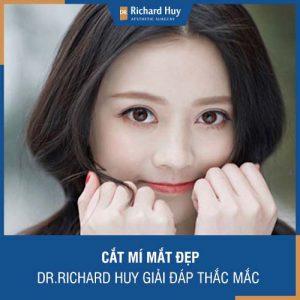 Cắt mí Richard Huy - Dr. Richard Huy giải đáp những vấn đề liên quan