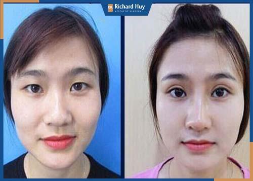Đôi mắt sau khi phẫu thuật to tròn và tự nhiên hơn