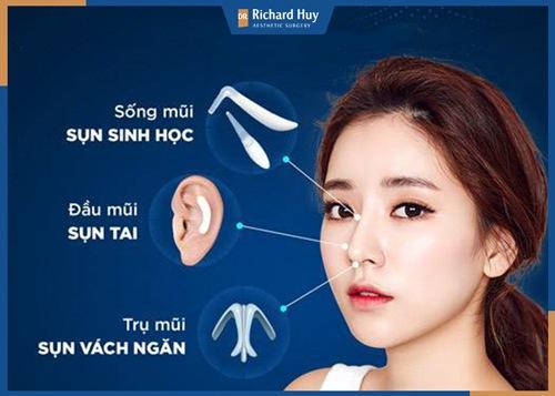 Các loại sụn tự thân được sử dụng trong nâng mũi cấu trúc