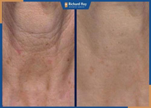 vùng da cổ nhăn nheo được cải thiện tối đa