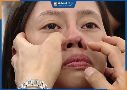 Phẫu thuật mũi bị hỏng, do chất liệu nhân tạo không tương thích với cơ thể