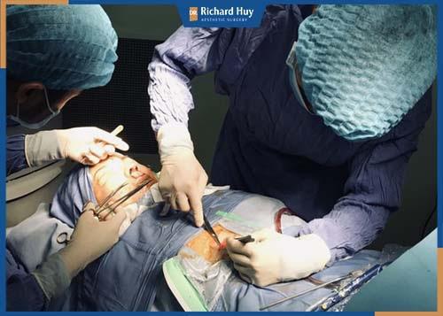 Kỹ thuật nâng mũi sụn sườn phức tạp cần sự tỉ mỉ chính xác cao