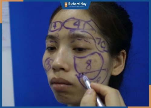 Gương mặt hốc hác, gầy gò thiếu sức sống nên thực hiện cấy mỡ mặt
