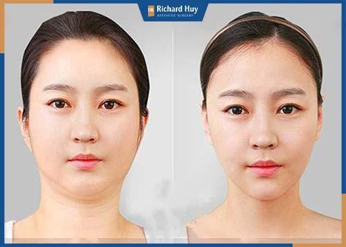 Giảm mỡ mặt giúp gương mặt trở nên thanh thoát và có đường nét