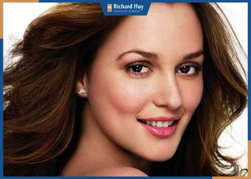 Phụ nữ có gò má cao thường lộ rõ khi cười và chuyển động cơ mặt