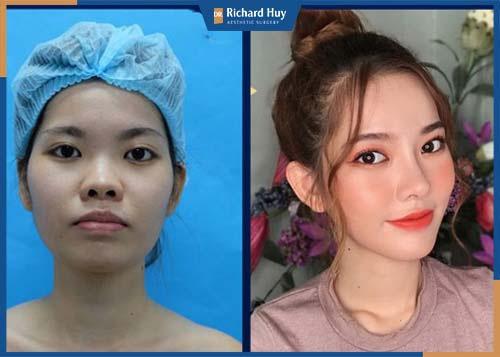 Gò má thấp hài hòa và cải thiện rõ rệt trên gương mặt