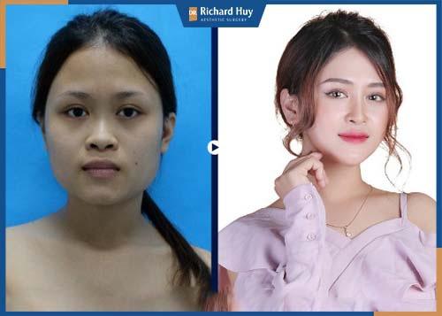 Gò má được hạ xuống 1 đến 2 cm mang lại sự hài hòa trên gương mặt.