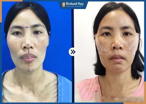 Hình ảnh khách hàng sau 1 tháng phẫu thuật hạ gò má