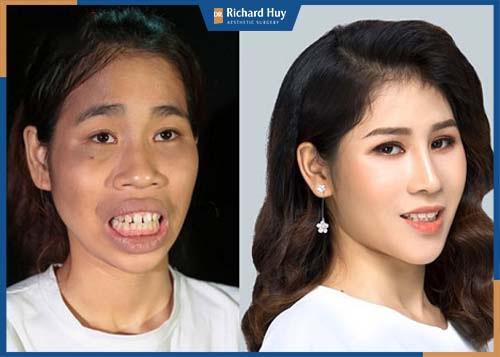 Hình ảnh khách hàng sau 6 tháng phẫu thuật hàm hô