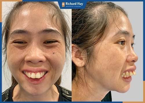 Răng nhô và lộ rõ ra ngoài, môi không khép kín khi để bình thường