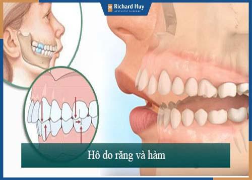 Cả răng và hàm mọc sai lệch, chìa ra bên ngoài