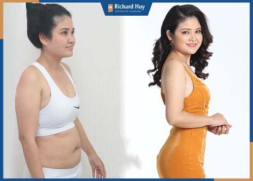 Tạo hình thành bụng một phần loại bỏ phần mỡ bụng dưới