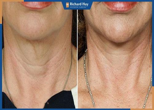 Trả lại làn da căng mịn chỉ với phương pháp căng da cổ Dr.Richard Huy