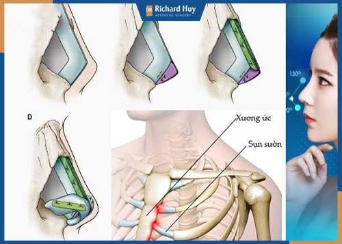 Sử dụng xương sụn sườn để tạo phần sống mũi cao và tự nhiên