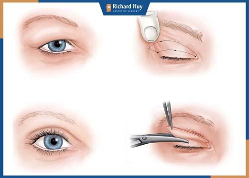 Mô phỏng kỹ thuật cắt mí mắt