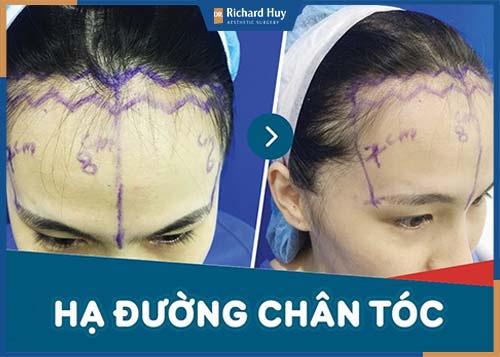 Bác sĩ tiến hành vẽ phần da loại bỏ để hạ đường chân tóc