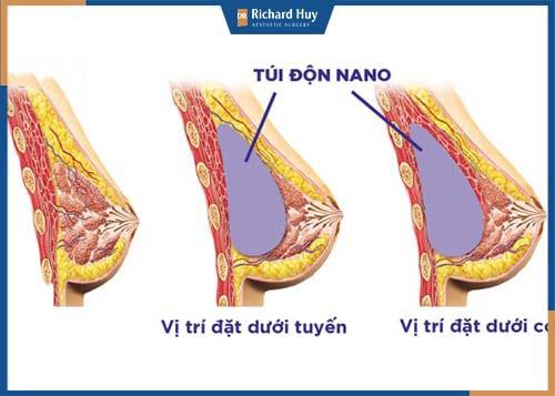 Mô phỏng kỹ thuật nâng ngực bằng túi Nano chíp thông minh
