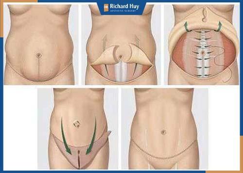 Mô phỏng kỹ thuật giảm mỡ bụng toàn phần