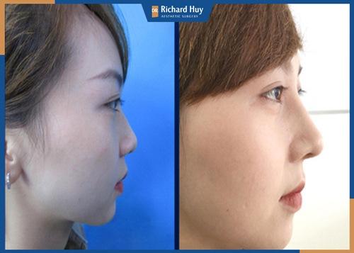 Phương pháp nâng mũi cấu trúc 4D NanoForm