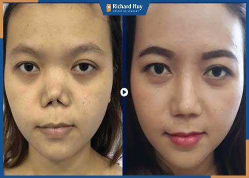 Mũi cao thẳng tự nhiên hài hòa với gương mặt sau phẫu thuật
