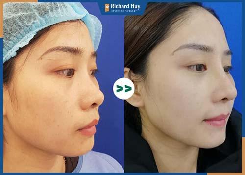 Mũi sau phẫu thuật an toàn hạn chế biến chứng xảy ra